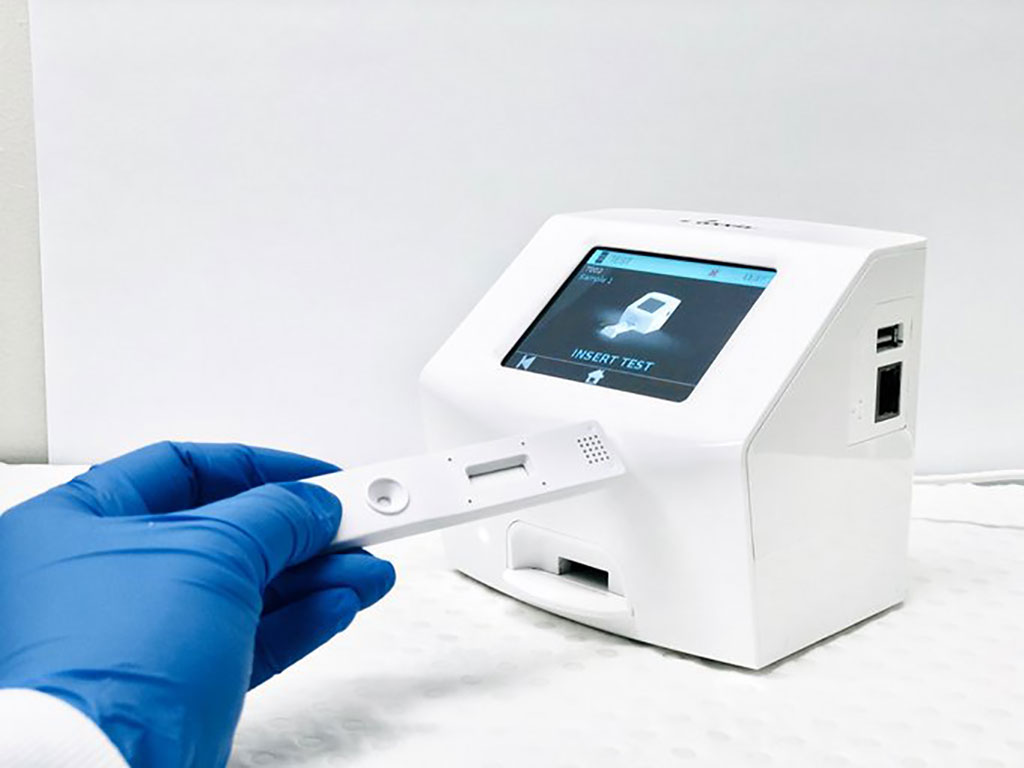Image: AnteoTech's EuGeni Reader and in vitro rapid diagnostic test (Photo courtesy of AnteoTech Ltd.)