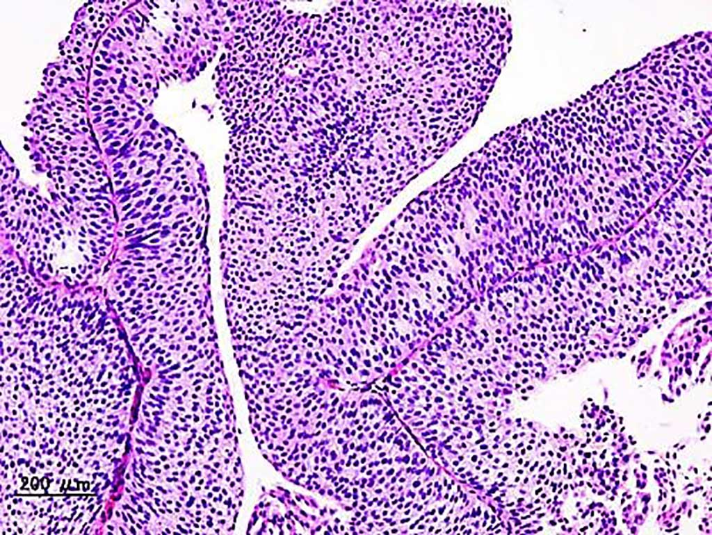 Image: Histopathology from a transurethral biopsy of urothelial carcinoma of the urinary bladder (Photo courtesy of KGH)