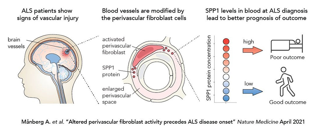Image: Altered Perivascular Fibroblast Activity Precedes Amyotrophic Lateral Sclerosis Onset (Photo courtesy of Karolinska Institutet)