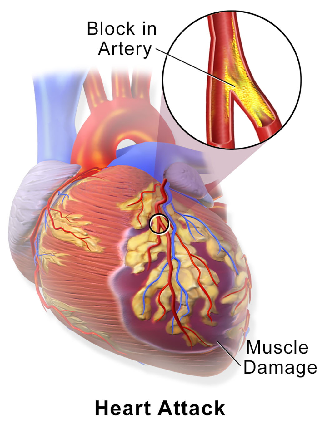 Image: A myocardial infarction (MI), commonly known as a heart attack, occurs when blood flow decreases or stops to a part of the heart, causing damage to the heart muscle (Photo courtesy of Wikimedia Commons)