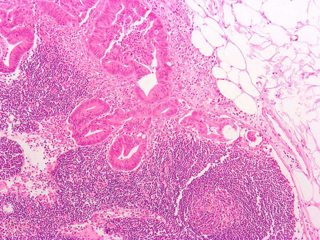 Image: Micrograph of a colorectal adenocarcinoma metastasis to a lymph node. The cancer (forming glands) is seen at the center-top. Adipose tissue is present on the upper right (Photo courtesy of Wikimedia Commons)