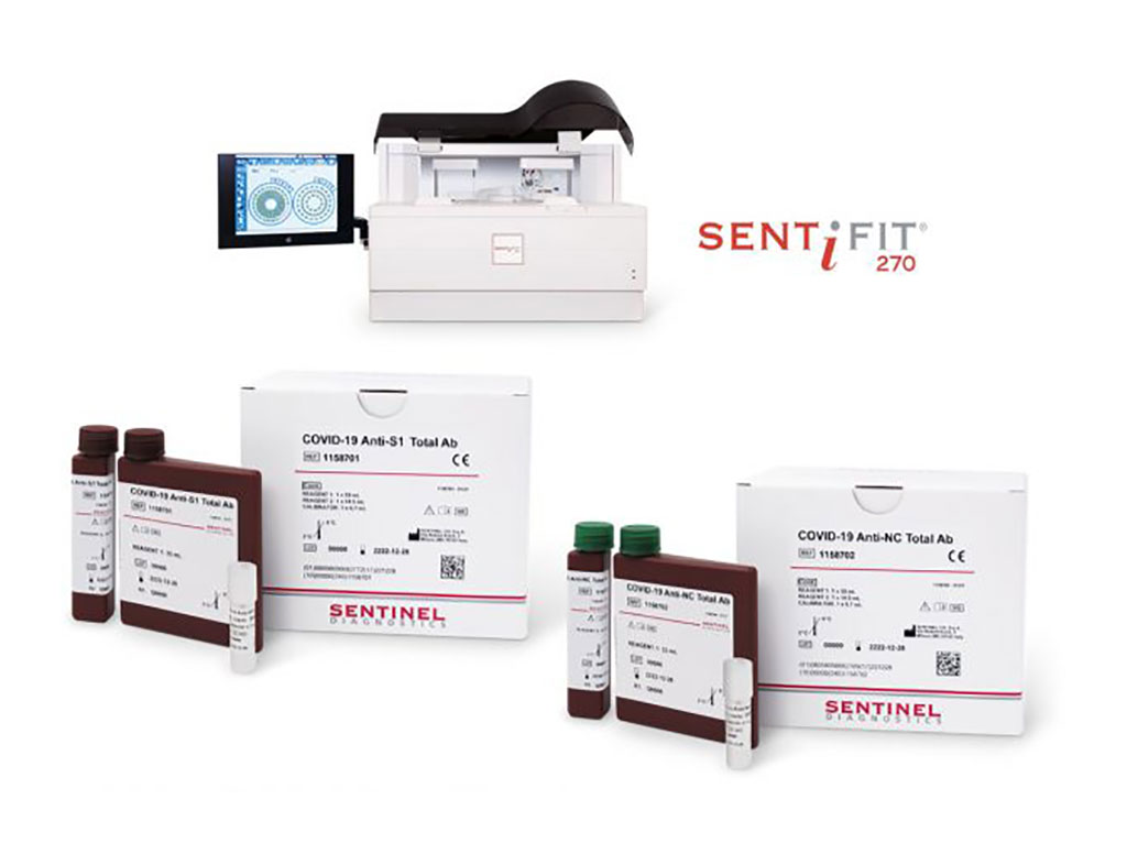 Image: COVID-19 Anti-S1 Total Ab and COVID-19 Anti-NC Total Ab assays (Photo courtesy of Sentinel Diagnostics)