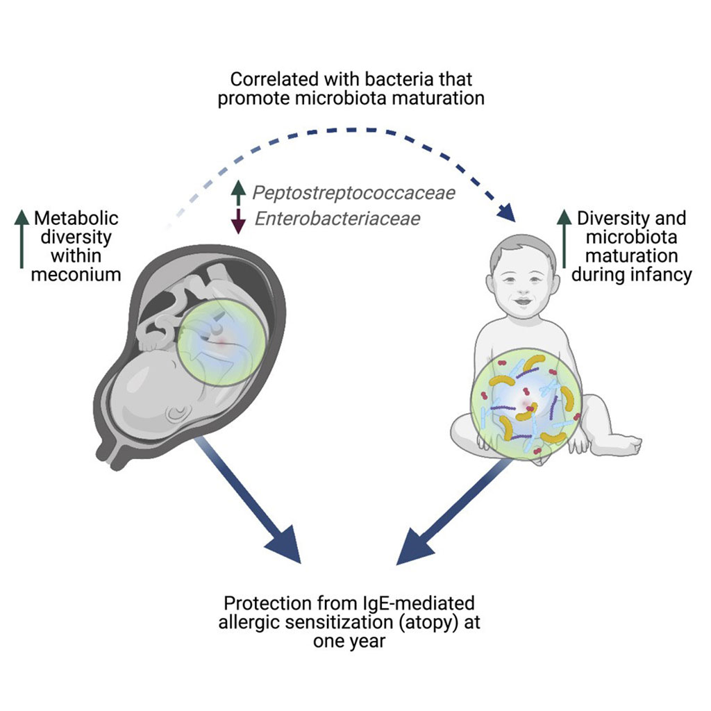 Image: Schematic diagram of a rich meconium metabolome in human infants is associated with early-life gut microbiota composition and reduced allergic sensitization (Photo courtesy of University of British Columbia)