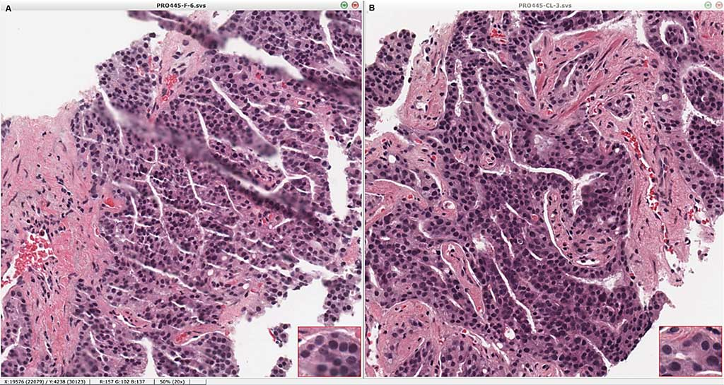 Image: Standard hematoxylin-eosin sections are unaffected by processing and imaging by clearing histology with multiphoton microscopy (CHiMP). Portions of the same core biopsy were submitted directly to standard processing (A) or processed by CHiMP and subsequently embedded in paraffin, sectioned, and stained (B), showing equivalent coloration and morphology (Photo courtesy of Yale School of Medicine)