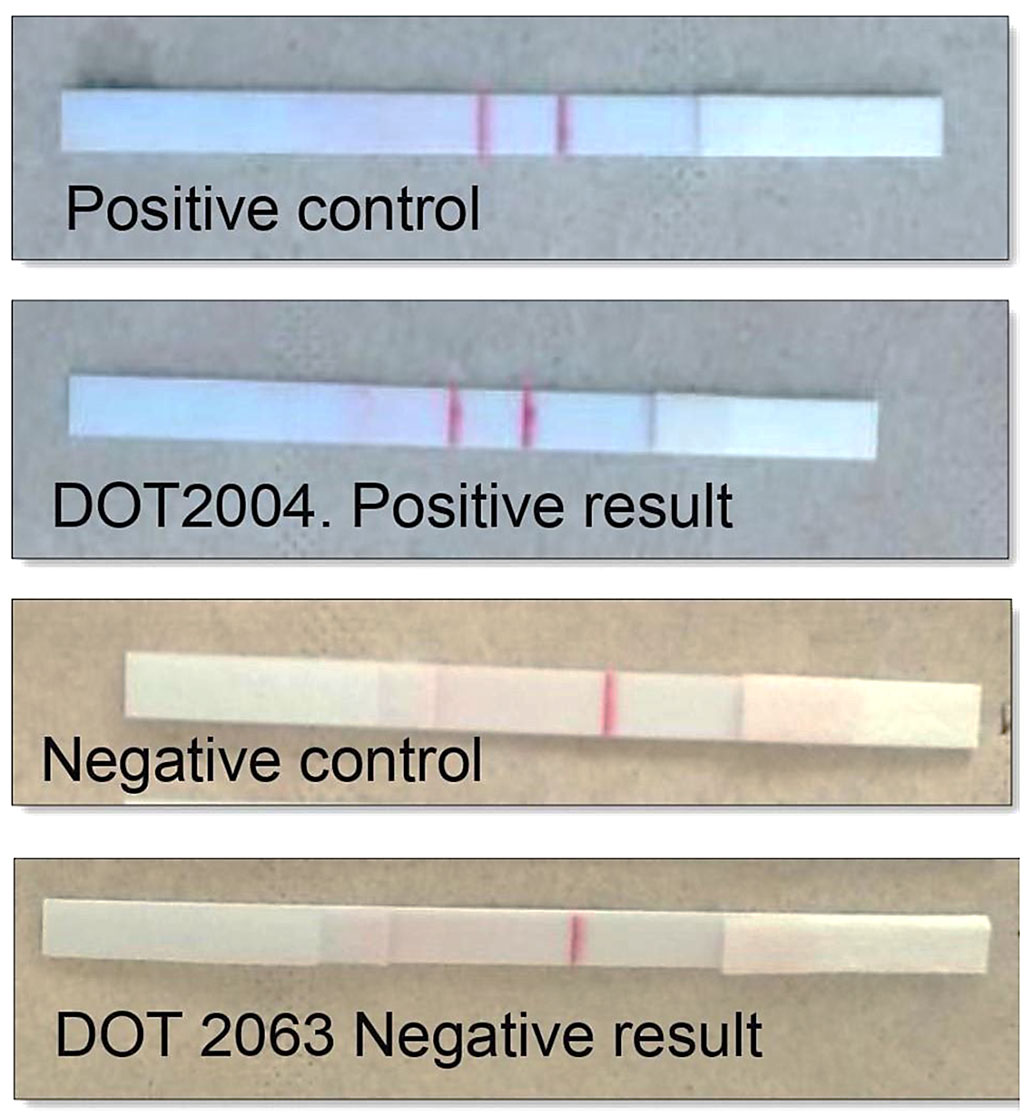 Image: Results of the Recombinase Polymerase Amplification-Lateral Flow (RPA-LF) assay for cutaneous leishmaniasis (Photo courtesy of University of Texas Medical Branch)
