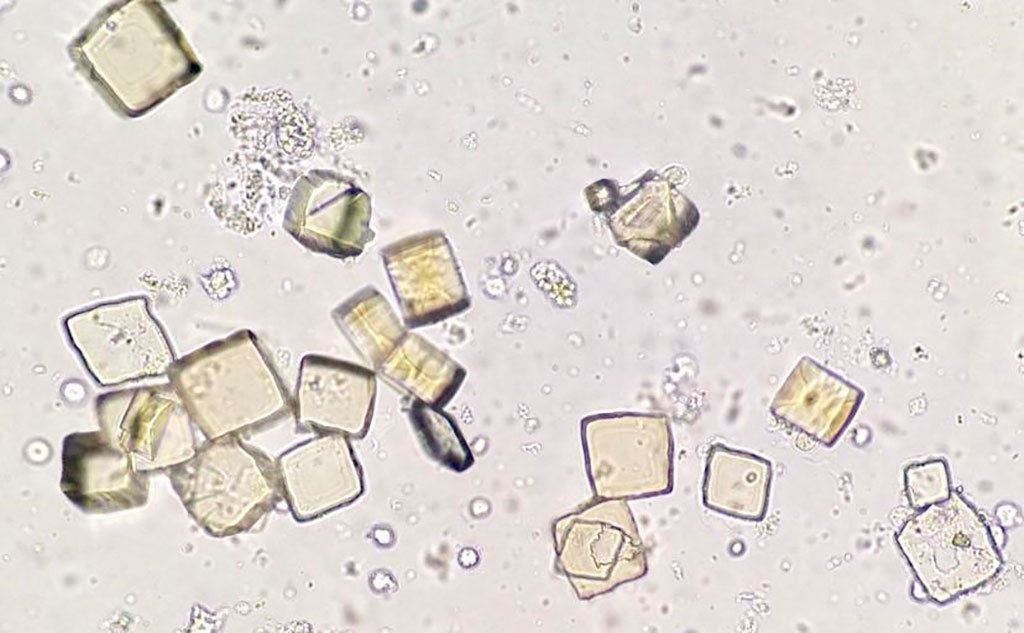 Image: Photomicrograph of uric acid crystals in urine sediment (Photo courtesy of cannablysss)