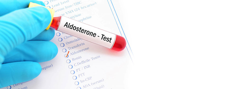 Image: Blood test for  plasma aldosterone concentration was used to screen For hyperaldosteronism in hypertensive men (Photo courtesy of  VisitHealth Ltd)