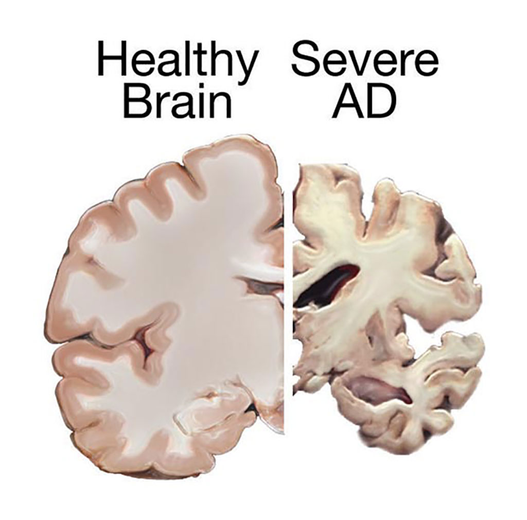 Image: Comparison of brain tissue from a healthy individual and an Alzheimer\'s disease (AD) patient, demonstrating extent of neuronal death (Photo courtesy of [U.S.] National Institutes of Health via Wikimedia Commons)