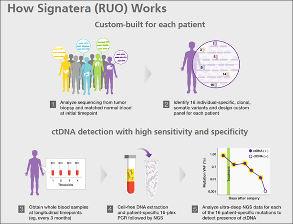 Image: Schematics of how the Signatera bespoke mPCR NGS assay works (Photo courtesy of Natera)