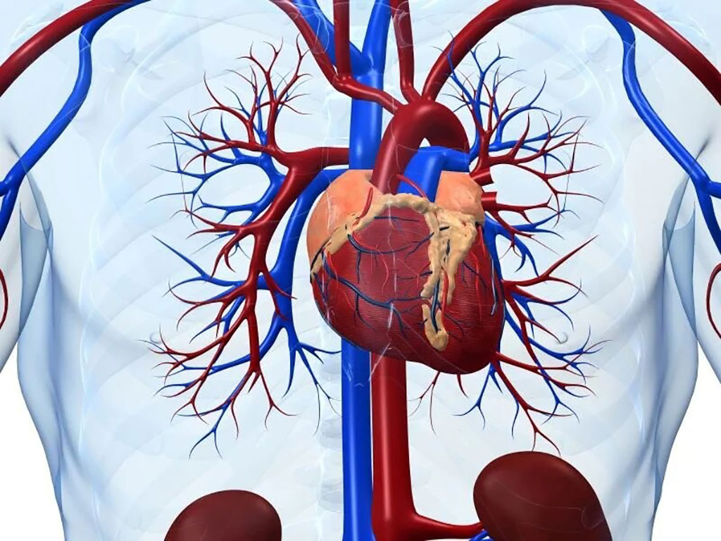 Image: Genetic variants are associated with unexplained sudden cardiac death in both adult White and African American individuals (Photo courtesy of Latin American Society of Interventional Cardiology)