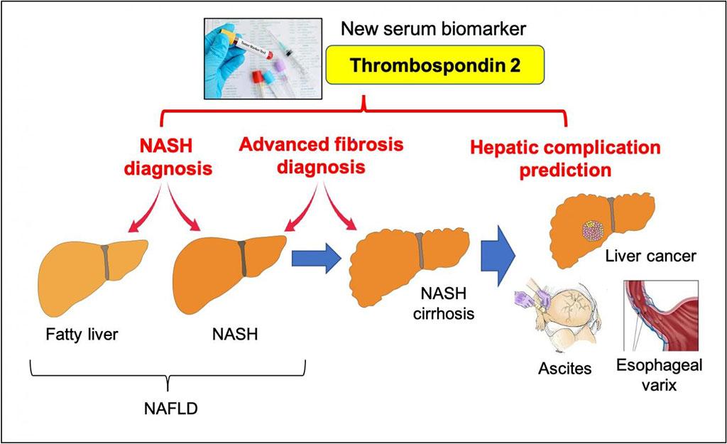 Image: Thrombospondin 2 is a new diagnostic and prognostic serum biomarker in NAFLD (Photo courtesy of Osaka University)