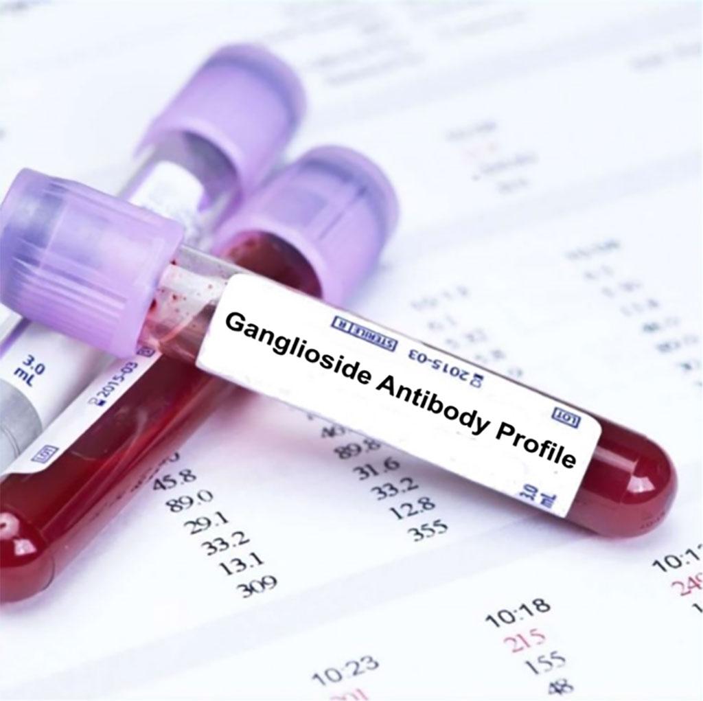Image: Anti-Ganglioside Antibodies Analyzed in Celiac Disease (Photo courtesy of Blood Tests London)