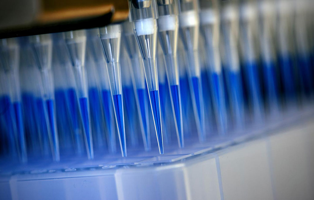 Image: Blue-stained swab material from corona tests is prepared for analysis in a sequencing device with the help of a laboratory robot (Photo courtesy of Felix Heyder / University Hospital Bonn)