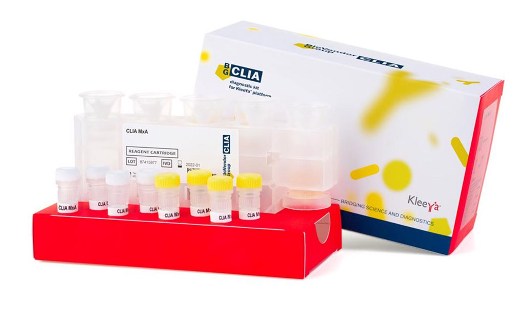 Image: Diagnostic kit for the KleeYa platform (Photo courtesy of BioVendor Group)