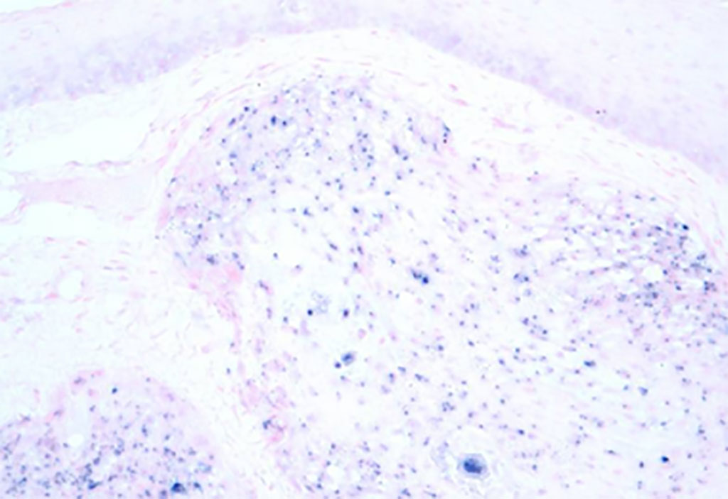 Image: Micrograph image of human papilloma virus associated oropharyngeal cancer (HPV+ OPSCC). The tissue was stained to show the presence of the virus by in situ hybridization (Photo courtesy of Wikimedia Commons)