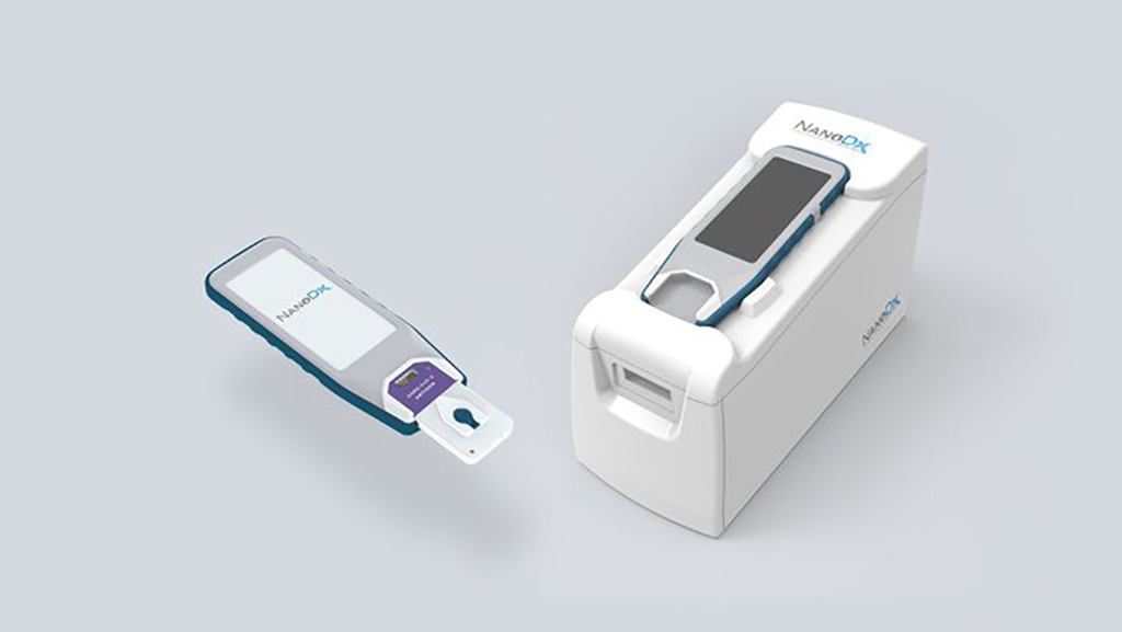 Image: Two-Minute COVID-19 Test Uses Nanosensor Technology to Detect Presence of SARS-CoV-2 Infection in Blood at POC (Photo courtesy of NanoDx, Inc.)