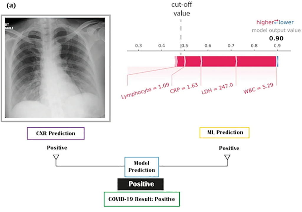 Image: Artificial Intelligence (AI) Model Identifies COVID-19 Patients Using Blood Tests and Chest X-Rays (Photo courtesy of Nature)