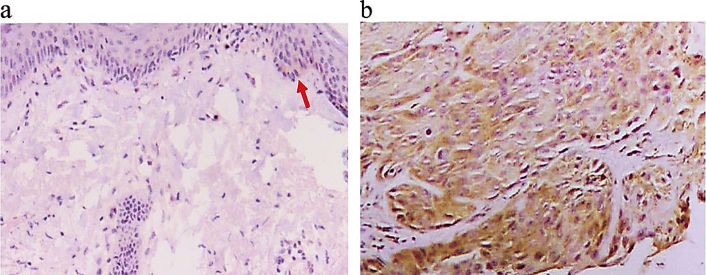 Image: Immunohistochemical (IHC) analysis of the normal tissue from a healthy subject showed several Matrix Metalloproteinase-13 (MMP-13) positive cells (light brown staining indicated by the red arrow in panel a. Panel b is an IHC microphotograph for the cSCC tissue, and brown staining can be seen in most of tumor cells (Photo courtesy of Weifang People's Hospital)
