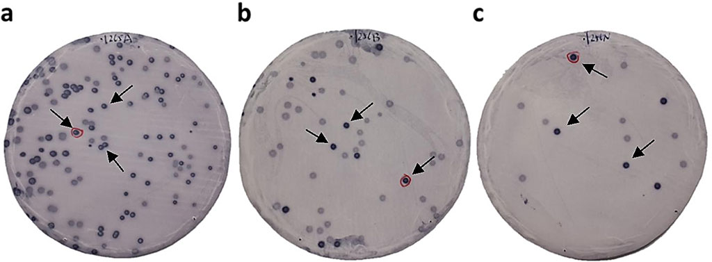 Image: Immunoscreening of TIA antigens by SEREX. Bacterial proteins including phage cDNA products were blotted on nitrocellulose membranes and reacted with the sera of patients with transient ischemic attack (TIA); arrows indicate positive phage clones (Photo courtesy of Chiba University)