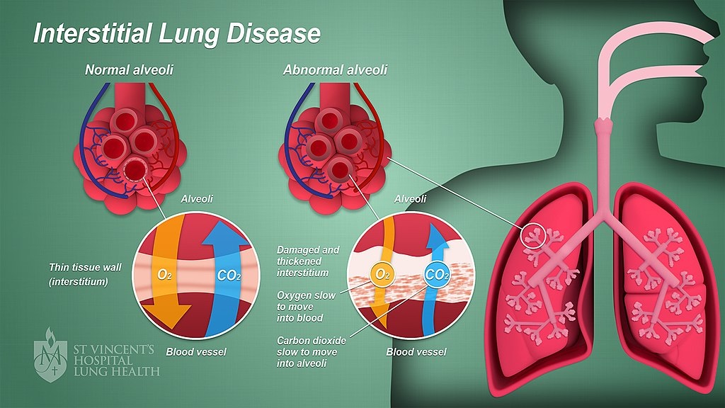 Interstitial lung disease affects gas flow in the alveoli (courtesy of: Wikimedia Commons)