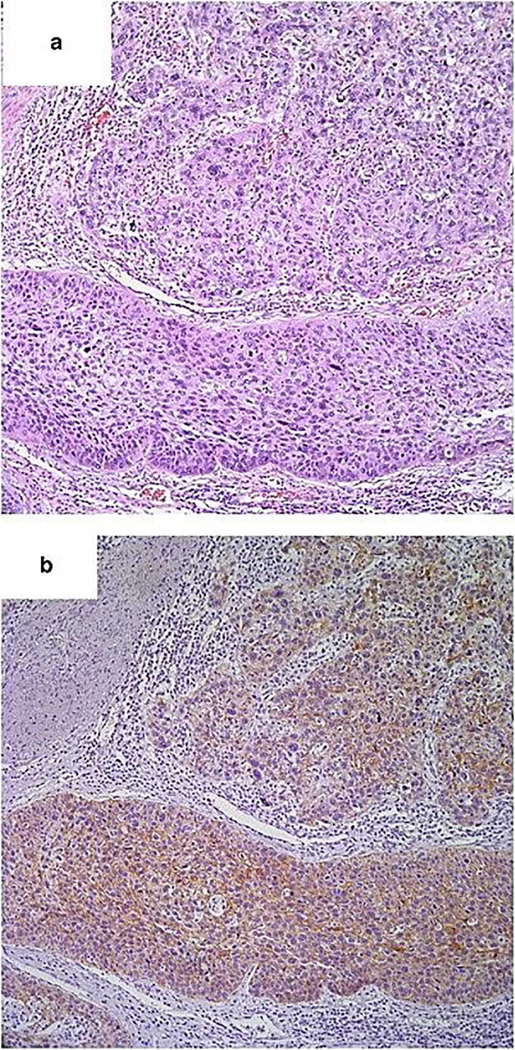 Image: Histopathology of (a) Usual-type high-grade urothelial carcinoma and (b) Positive E-cadherin expression in usual-type high-grade urothelial carcinoma. (Photo courtesy of Emory University School of Medicine)