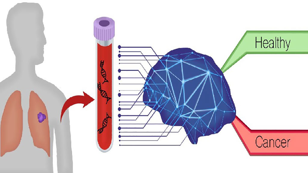 Image: DELFI blood test identifies lung cancer using artificial intelligence to detect unique patterns in the fragmentation of DNA shed from cancer cells compared to normal profiles (Photo courtesy of Carolyn Hruban)