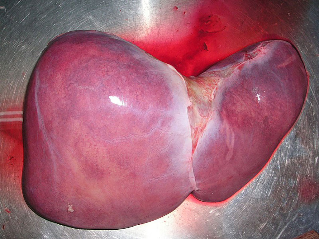 Image: A healthy human liver. A biomarker linked to the organ donor predicts the likelihood that a transplanted liver will be accepted or rejected by the recipient of the organ (Photo courtesy of  Wikimedia Commons)