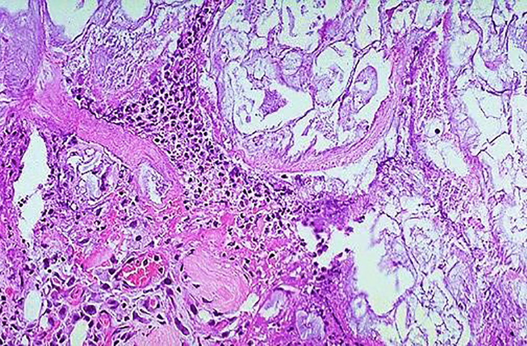 Histopathology of acute pancreatitis: necrosis of pancreatic parenchyma (lower left) with acute inflammation and fat necrosis (right and upper part of photograph) (Photo courtesy of Florida State University College of Medicine)
