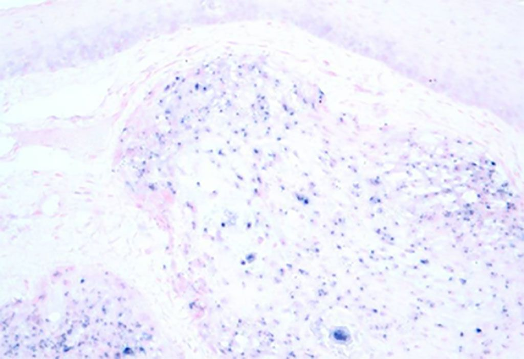 Image: Micrograph image of human papilloma virus associated oropharyngeal cancer (HPV+ OPC). The tissue was stained to show the presence of the virus by in situ hybridization (Photo courtesy of Wikimedia Commons)