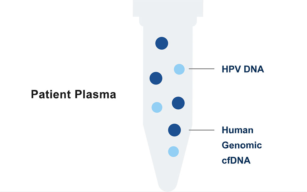 Image: The HPV-Seq test is an ultra-sensitive liquid biopsy solution for the identification and quantification of circulating HPV 16 and HPV 18 DNA in patients with cancers caused by HPV infection (Photo courtesy of Sysmex Inostics)