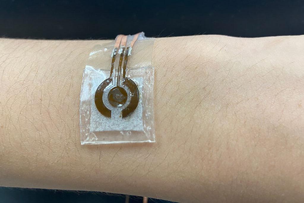 Image: Wearable, Non-invasive Glucose Sensor (Photo courtesy of Jia Zhu)
