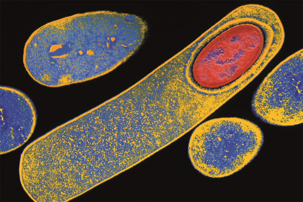 Image: Colored Transmission electron micrograph of Clostridium difficile bacterium forming an endospore (lower right, red oval). Clostridium difficile produce a toxin that irritates the colon and causes diarrhea (Photo courtesy of Kari Lounatmaa, PhD)