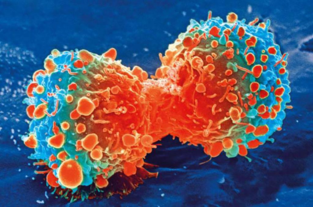 Image: A cancer cell during cell division (Photo courtesy of [U.S.] National Institutes of Health)