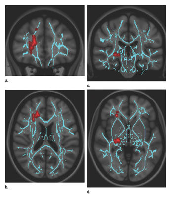 convergence insufficiency correlates with increased fa in right anterior  thalamic radiation, which is central to