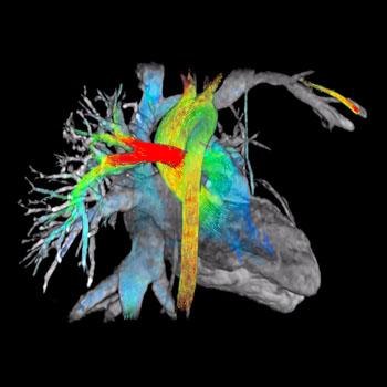 New Software Simplifies Cardiac MRI Workflow - Imaging IT
