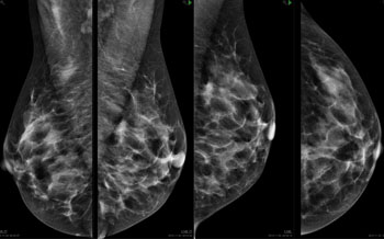 Image: The image shows diffuse opacity in the left breast of a woman who presented with a palpable lump in the same breast 10 months after a prior screening. (Photo courtesy of Unilabs Mammography, Capio St Goran\'s hospital - Stockholm/SE).