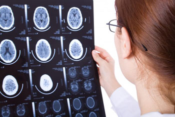 Image: The new partnership is intended to develop a support tool to improve outcomes for stroke patients (Photo courtesy of Bigstock).