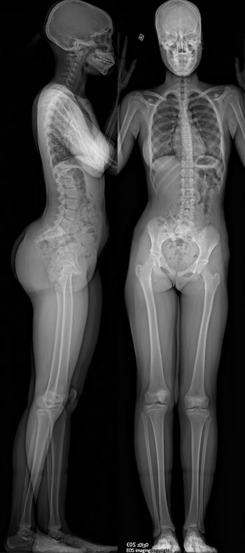 Image: A full-body X-ray image produced by the EOS imaging scanner (Photo courtesy of EOS Imaging).