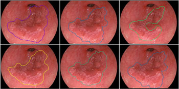 Image: Contours of early esophageal cancer drawn by specialists, compared to the contour drawn by the computer algorithm (top-right) (Photo courtesy of the Eindhoven University of Technology).