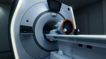 Image: The Exablate Neuro MRgFUS therapy system (Photo courtesy of InSightec).