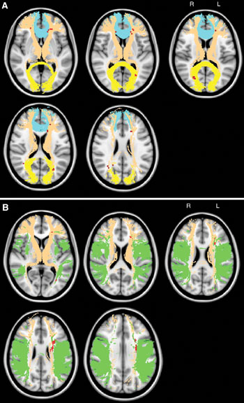 Image: The topography of chronic ischemic lesions related to global cognitive impairment (A), and the topography of chronic ischemic lesions related to impaired fluency (B) (Photo courtesy of RSNA).