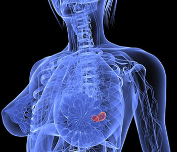 Image: Breast cancer shown in 3D (Photo courtesy of the U.S. FDA).