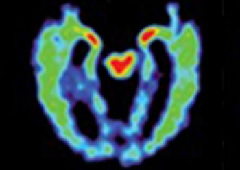Image: A PET scan of a brain with suspected CTE; red and yellow indicate abnormal brain protein (Photo courtesy of UCLA).