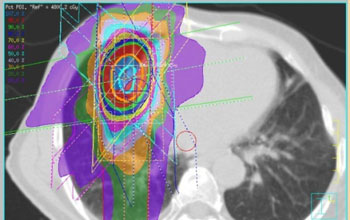 Image: An example of dose distribution of SBRT for lung cancer (Photo courtesy of the NIH).