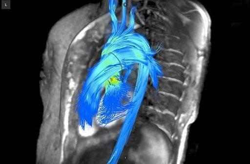 Image: An image generated by the 4D Arterys cardiac flow quantification software (Photo courtesy of Arterys).