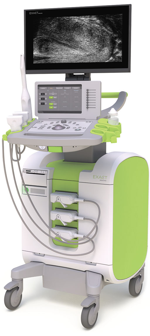 Image: The ExactVu Micro-ultrasound system (Photo courtesy of Exact Imaging).