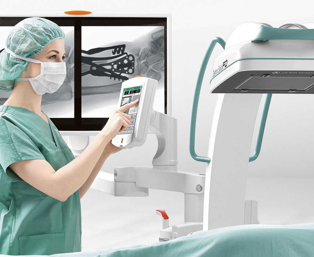 Image: The Ziehm Solo FD C-arm imaging system fitted with CMOS Flat-Panel (FP) detectors (Photo courtesy of Ziehm Imaging).
