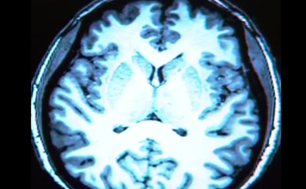 Image: An example of a brain MRI scan used in the study (Photo courtesy of RSNA).