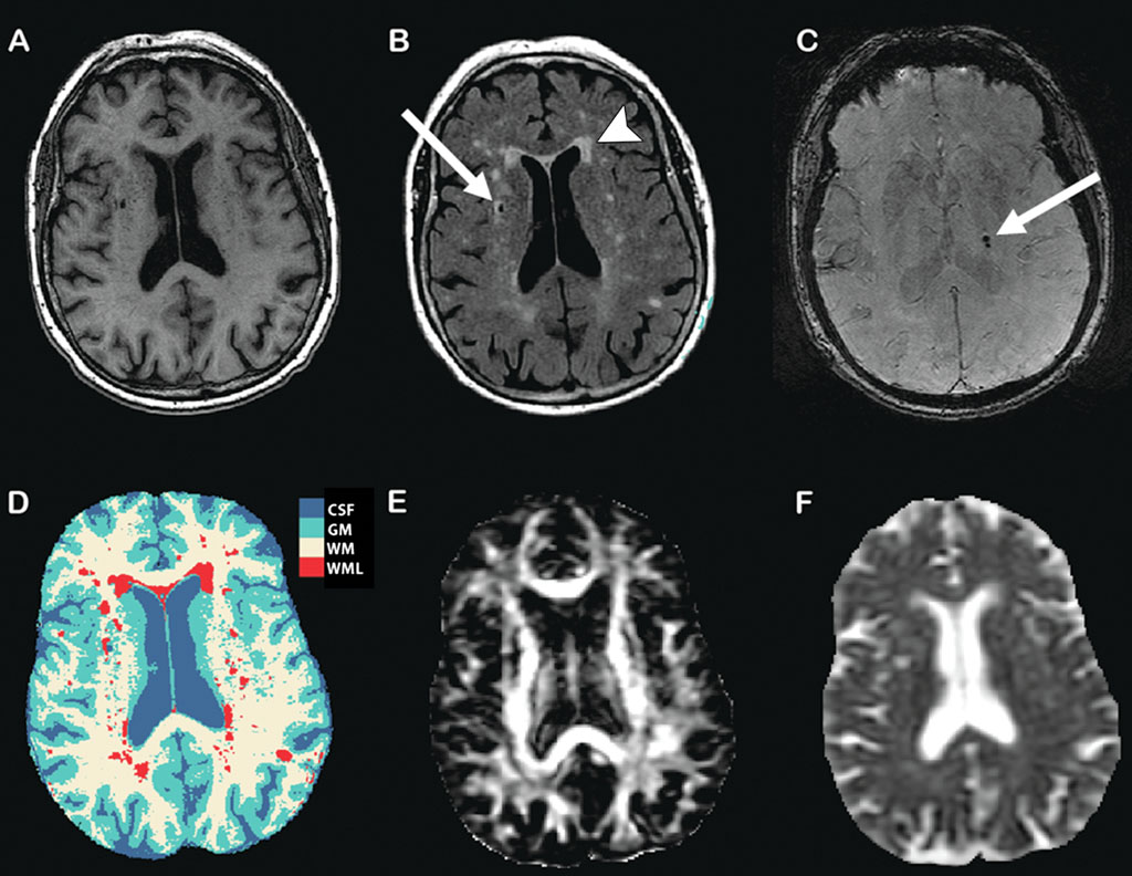 Image: The structural MR imaging markers of sub-clinical brain damage (Photo courtesy of RSNA).