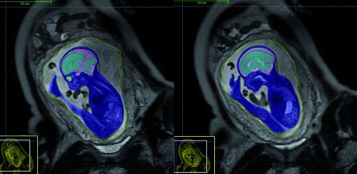 Image: An example of a fetal Magnetic Resonance Imaging (MRI) scan (Photo courtesy of Action Medical Research).